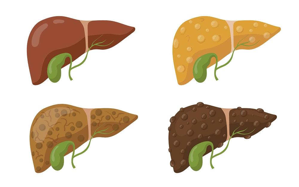 Різновиди гепатиту