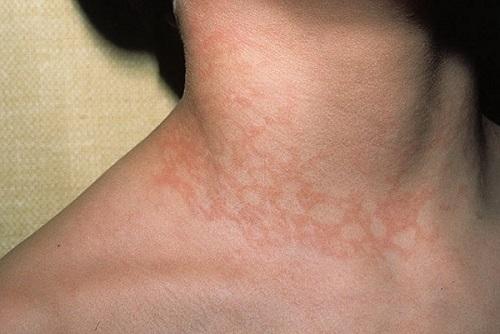 проявление инфекционной эритремы