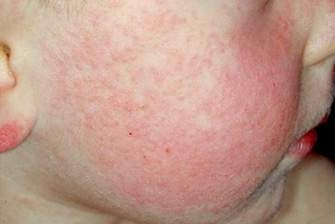 проявление инфекционной эритремы у детей